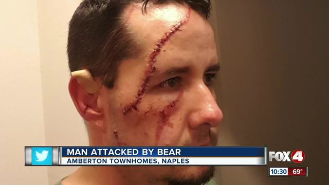 Bear attacks man who let his dog out for a walk